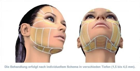 Behandlung mit Ultherapy